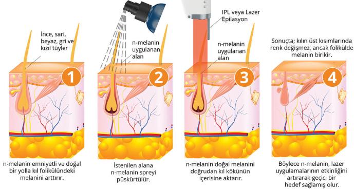 Lazer epilasyon uygulanması esnasında işte bunlar gerekli